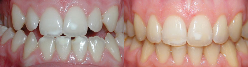 4 Premolar Extraction to Correct Crowding