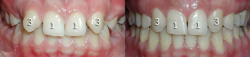 Missing Maxillary Lateral Incisors