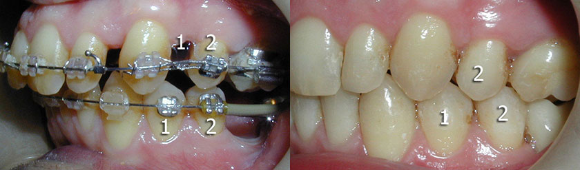 2 Premolar Extraction and Overjet Reduction