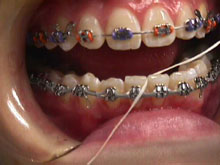 Start by flossing between the teeth until you hit the wire