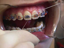 Floss around each tooth