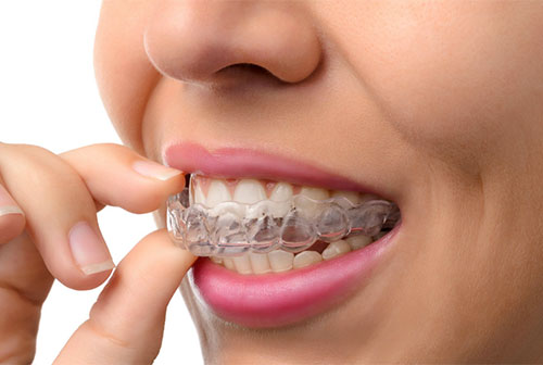 Invisalign® (Invisible) Orthodontic Appliances   Pittsburgh